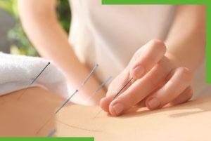 acupuntura quito